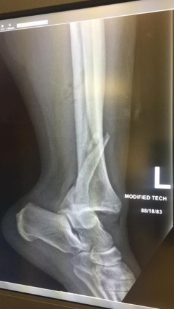 X-Ray of a dislocated ankle and fractured leg